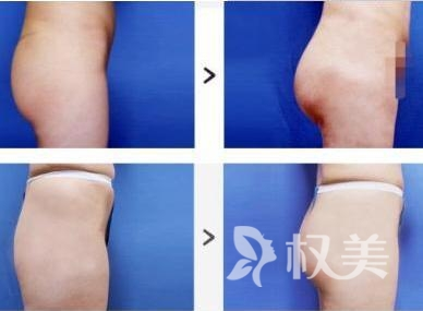 做臀部吸脂手术有没有副作用呢  效果怎么样