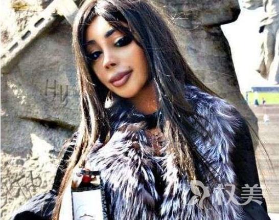 俄罗斯的女星Alina pisken整容上瘾 伤害身体换来名利值得吗