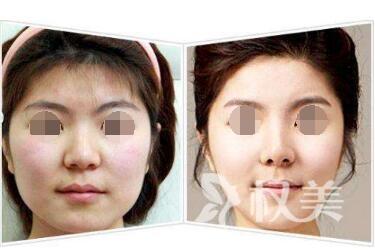 厦门长庚整形医院面部吸脂效果怎么样  无副作用  不会留疤