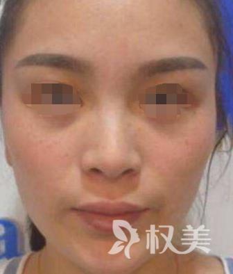 在桂林星范做鼻综合  体验到了精雕艺术 气质美鼻带给我的震撼