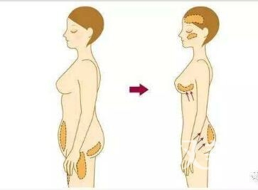 自体脂肪丰胸手术有什么好处  有哪些副作用