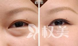 自贡尚美医疗美容整形专家介绍:卧蚕和眼袋的区别