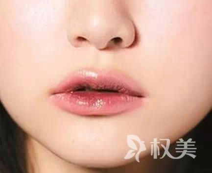 厚唇变薄术后会不会留疤  切口隐蔽在口内 效果理想
