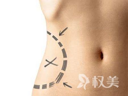 腰腹部吸脂多久恢复 体质好护理好就恢复的快