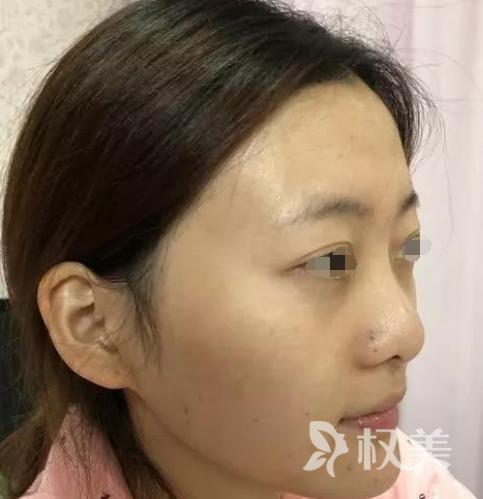 不能因为一个鼻子毁一张脸 武汉壹加壹做鼻综合整形让我有了韩式小翘鼻