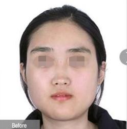 女汉子到女神 之间只差一个下颌角手术  我在深圳美莱华丽转身的经历