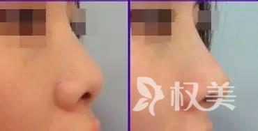 湛江澳泰整形鼻綜合效果好不好 鼻子整形修復能解決哪些鼻子問題