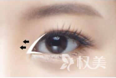 开眼角术有什么优势呢  术后恢复期需要几天