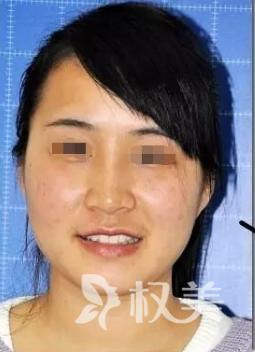 干干净净清清爽爽 分享我在芜湖壹加壹美容医院做大Q激光祛斑效果