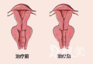广州红十字会医院做阴道紧缩有什么效果吗  术后多久才能恢复