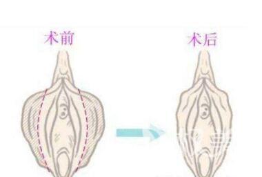 廣州暨南大學附屬第一醫院整形科小陰唇肥大矯正手術有什么優點