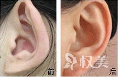 廣州中山醫博濟整形醫院做小耳畸形矯正術有什么優點  適應癥有哪些