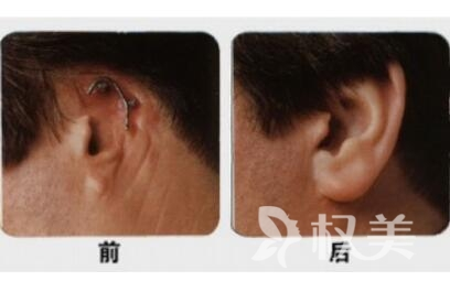 廣州古汀醫療美容抗衰老中心全耳再造手術效果自然嗎  有沒有年齡限制