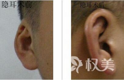 廣州華美醫學美容醫院隱耳整形手術有什么特點  嬰兒可以做矯正嗎