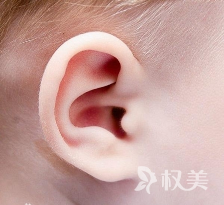 上海海華醫院整形科小耳畸形矯正價格高嗎