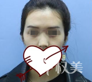深圳美莱整形医院杀手肋软骨假体隆鼻术 解决了我多年的烦恼