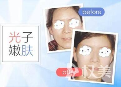 重庆第三军医大学大坪医院整形科光子美白嫩肤有哪些优点呢