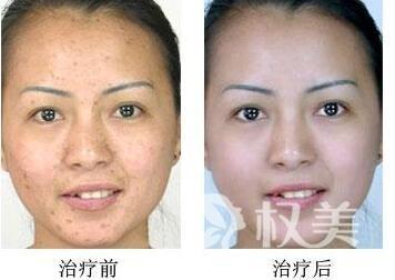 重庆第六人民医院整形科做激光祛疤会有哪些优势  多久才能恢复