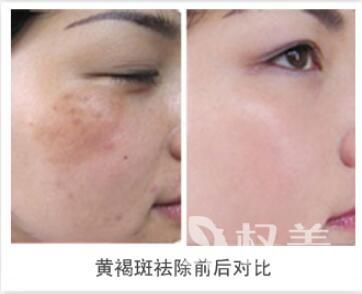 重庆中山医院整形科激光去黄茹姐褐斑的优势有哪些  术后会小声嘀咕不会留疤呢