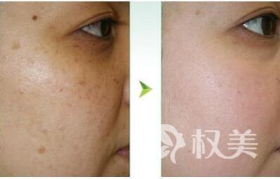 重庆铂生医学美容医院激光点痣有哪些优势  术后如何避免留疤