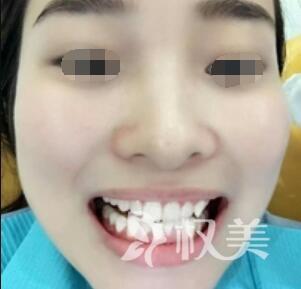 牙齿不齐怎么办  牙齿矫正案例  矫正还是隐形的好