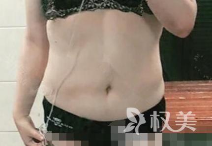 我在保定杏林整形医院做腰腹吸脂术 瘦到以前的裤子穿着都大了