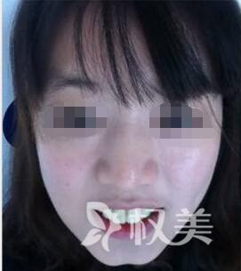 在成都锦江极光 我找到了牙齿美白方法 我的人生从此大不同