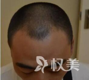浙江人民医院整形科头发加密的效果怎么样  种植流程是怎么样的
