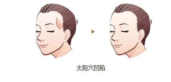 上海时光面部填充技术怎么样 自体脂肪填充太阳穴效果好不好