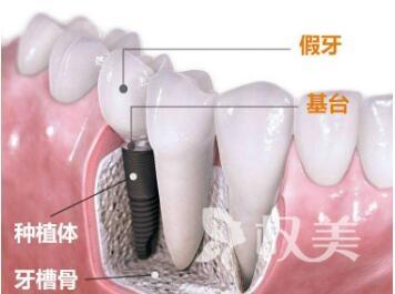佛山第二医院整形科种植牙术后效果如何  修复牙齿有风险吗