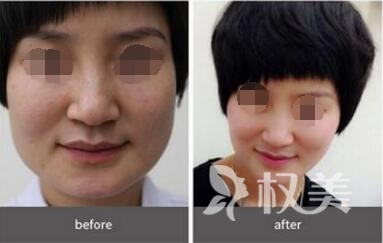 重庆星范丽格整形医院做磨骨手术优势有哪些  会出现后遗症吗
