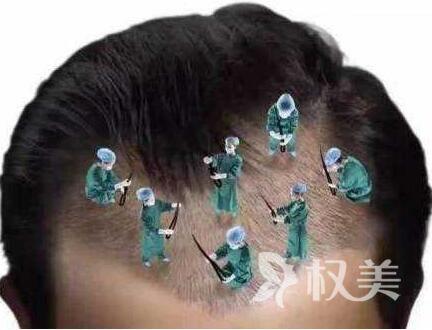 植发风险有没有 苏州乐桥疤痕植发优势