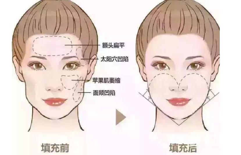 面頰部填充的方法有哪些 自體脂肪填充有副作用嗎