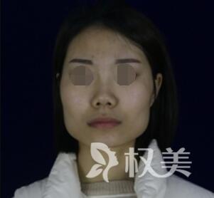 下颌角整形案例前后对比图  终于有了网红脸