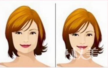 杭州富阳下颌角整形的效果明显吗  有没有风险啊
