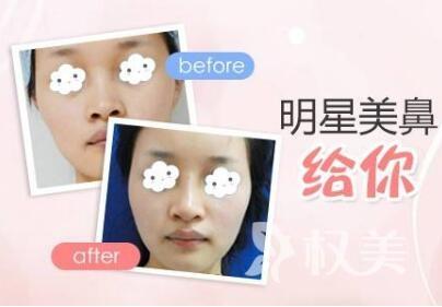 浙江绿城医院整形科假体隆鼻手术的优势有哪些  主要有三种材料