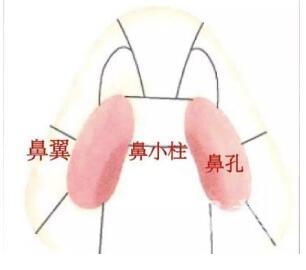 江门人民医院整形外科鼻翼缩小的方法有哪些  有没有副作用