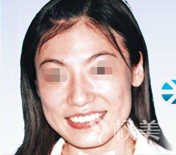 下颌角磨骨手术 女汉子到女神美丽不止一点点