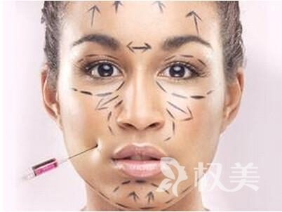 激光去法令纹需要注意哪些问题  三天内不要用热水洗脸