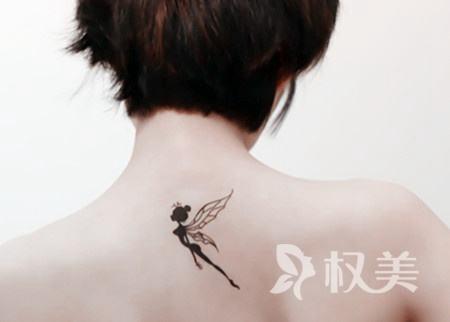 山东潍坊中■医院整形科激光洗纹身要做几次