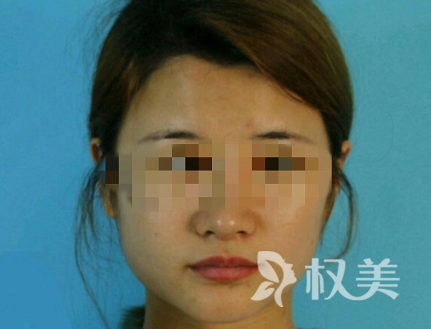 我的下颌角整形案例 上海美联臣医疗整形医院做下颌角切除 拥有精致小脸