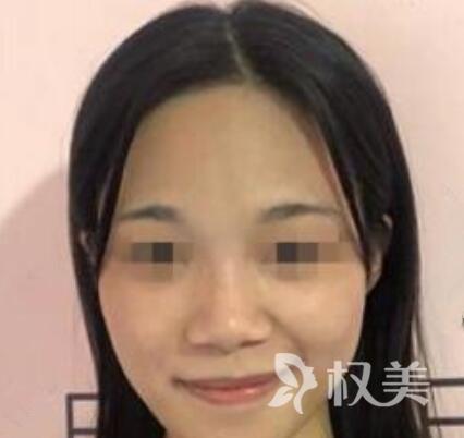 我在北京八大处整形医院做了隆综合 感觉自己美美哒