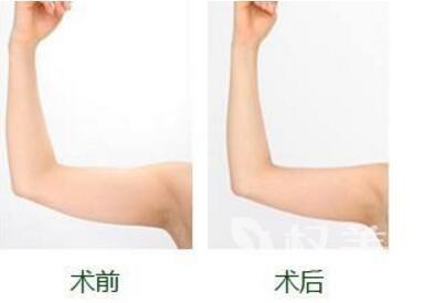 深圳流花医院整形科手臂吸脂的效果可以保持多久  安不安全呢