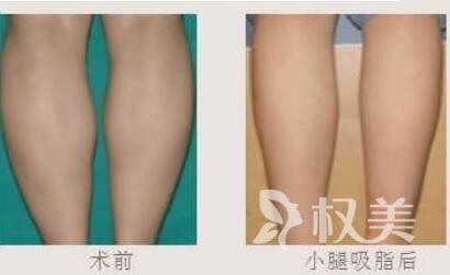 金華中心醫院整形科小腿吸脂手術有什么特點  恢復期是多久