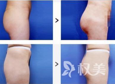 杭州杭城皮肤表医院做臀部吸脂术有什么效果  有副作用吗