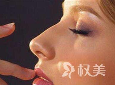 长春吉大二院医疗整形科假体隆鼻优点是什么