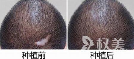 疤痕植发的原理是什么 后枕部头发少能植发吗