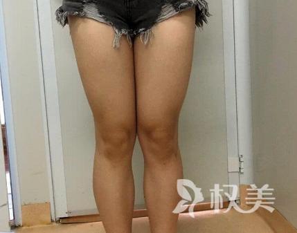 杭州伊琳医疗美容整形医院 吸脂瘦腿 告别大象腿 速成腿精