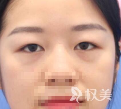 我在北京八大处整形医院 体验双眼皮整容手术 完美电眼诞生记