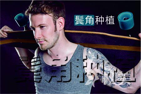 北京丽都植发医院 男士鬓角植发贵不贵 方法不同价格不同